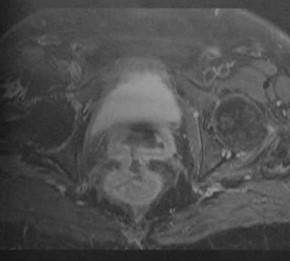 Снимки МРТ и КТ. Пузырно-влагалищные и пузырно-прямокишечные свищи