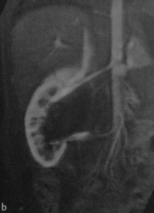 Снимки МРТ и КТ. Пороки развития лоханочно-мочеточникового соустья
