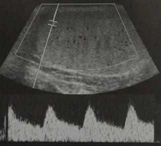 Снимки МРТ и КТ. Анатомия мошонки