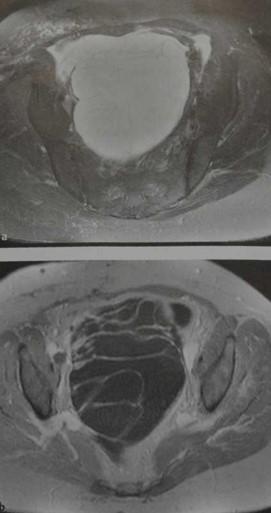 Снимки МРТ и КТ. Цистаденома яичника