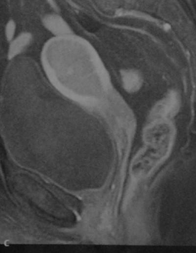 Снимки МРТ и КТ. Рак эндометрия
