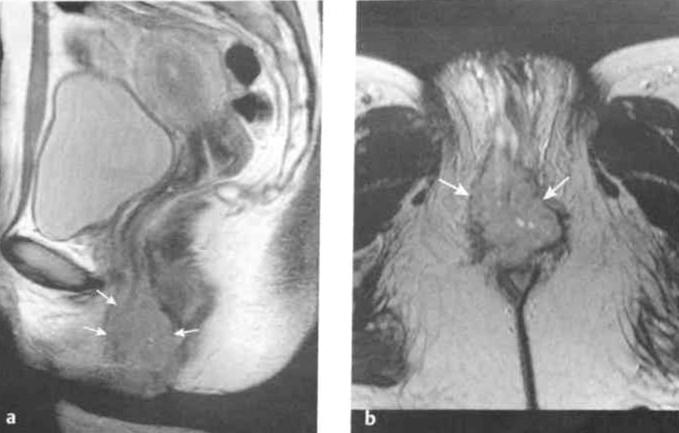 Снимки МРТ и КТ. Рак вульвы