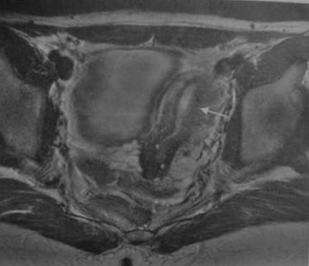 Снимки МРТ и КТ. Пороки развития матки и влагалища