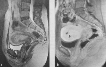 Снимки МРТ и КТ. Полипы эндометрия