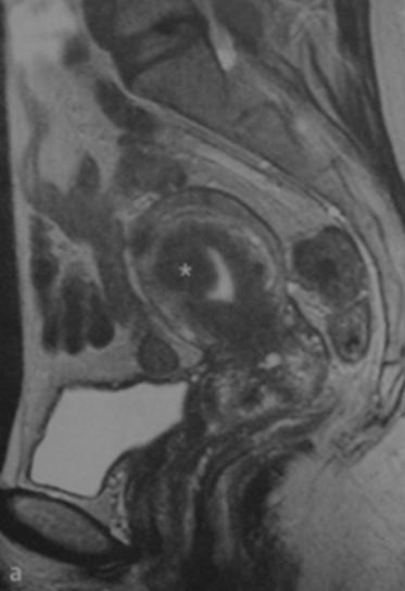 Снимки МРТ и КТ. Лейомиома