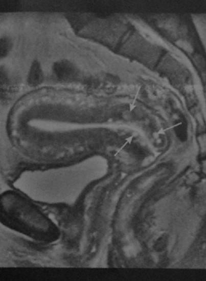 Снимки МРТ и КТ. Кисты шейки матки, влагалища и вульвы