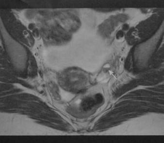 Снимки МРТ и КТ. Эндометриоз