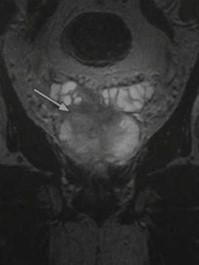 Снимки МРТ и КТ. Рак предстательной железы