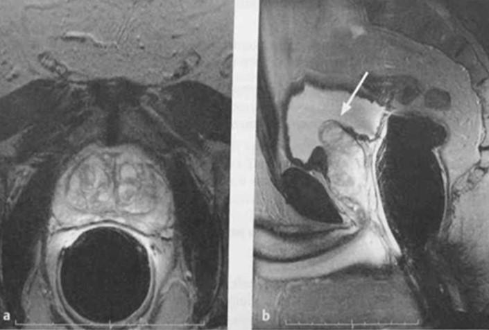 Снимки МРТ и КТ. Доброкачественная гиперплазия предстательной желез