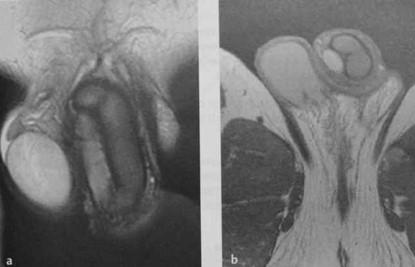 Снимки МРТ и КТ. Фиброз кавернозных тел полового члена