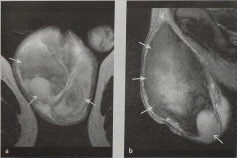 Снимки МРТ и КТ. Травма яичка