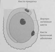 Снимки МРТ и КТ. Кисты яичка и придатка яичка