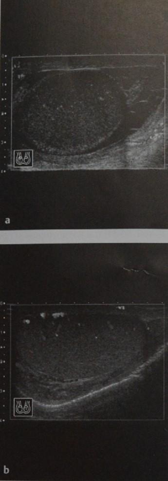 Снимки МРТ и КТ. Перекрут яичка