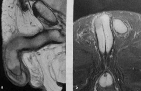 Снимки МРТ и КТ. Злокачественные новообразования полового члена