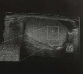 Снимки МРТ и КТ. Микролитиаз яичка