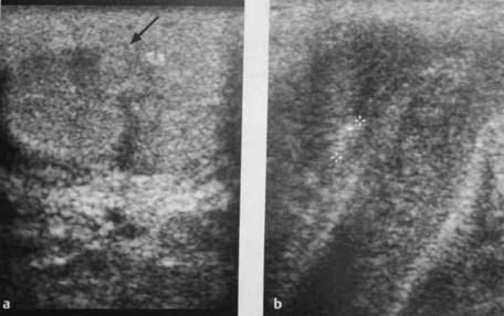Снимки МРТ и КТ. Болезнь Пейрони