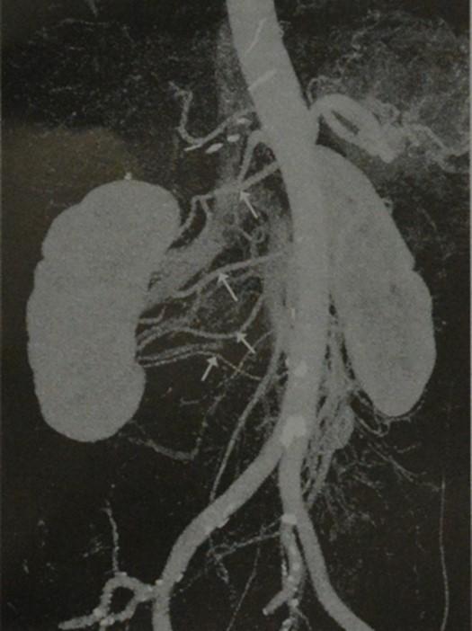 Снимки МРТ и КТ. Добавочная почечная артерия