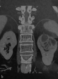 Снимки МРТ и КТ. Ксантогранулематозный пиелонефрит