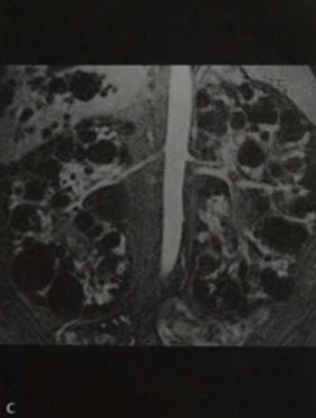 Снимки МРТ и КТ. Поликистозная болезнь почек (поликистоз)