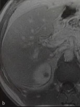 Снимки МРТ и КТ. Лимфома почки