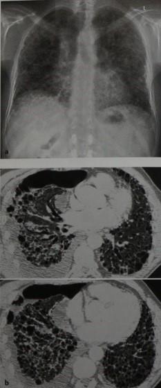 Снимки МРТ и КТ.  Экзогенный аллергический альвеолит