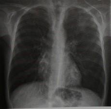 Снимки МРТ и КТ.  Аллергический бронхолегочный аспергиллез