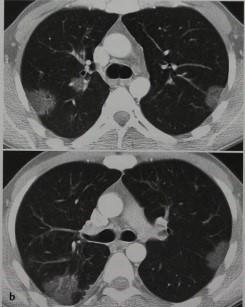 Снимки МРТ и КТ. Эозинофильная пневмония