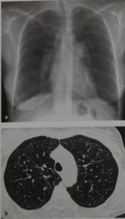 Снимки МРТ и КТ. Гистоцитоз Х