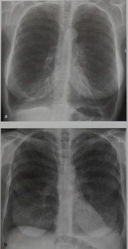 Снимки МРТ и КТ. Лимфангиолейомиоматоз