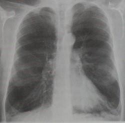 Снимки МРТ и КТ. Эмфизема легких