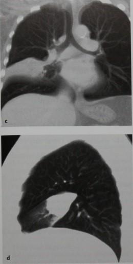 Снимки МРТ и КТ. Синдром средней доли