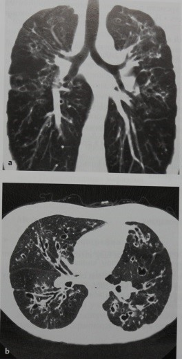Снимки МРТ и КТ. Муковисцидоз (кистозный фиброз)