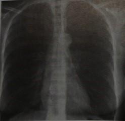 Снимки МРТ и КТ. Хронический бронхит