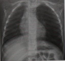 Снимки МРТ и КТ. Аспирация (асфиксия) инородного тела