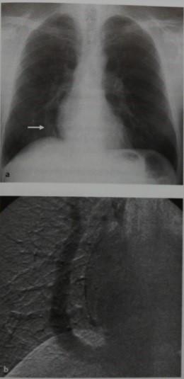 Снимки МРТ и КТ. Синдром «ятагана»