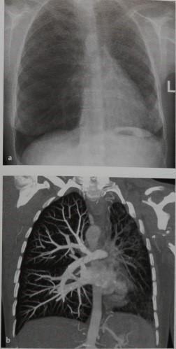 Снимки МРТ и КТ. Гипоплазия и атрезия легочной артерии