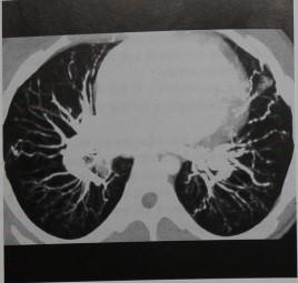 Снимки МРТ и КТ. Артериовенозные мальформации