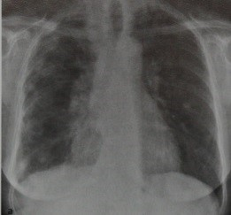 Снимки МРТ и КТ. Метастазы в плевру
