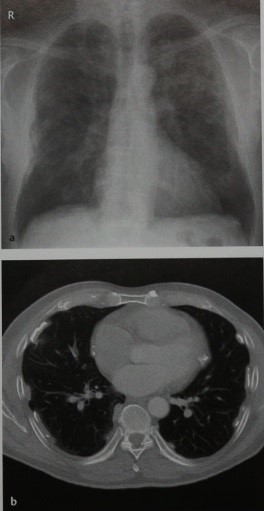 Снимки МРТ и КТ. Плевральные бляшки