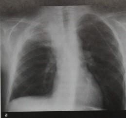 Снимки МРТ и КТ. Актиномикоз