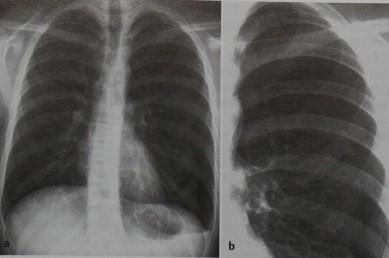 Снимки МРТ и КТ. Пневмоторакс: открытый, закрытый, клапанный