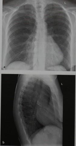 Снимки МРТ и КТ. Воронкообразная грудь
