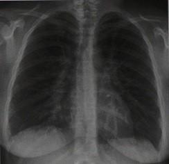 Снимки МРТ и КТ. Микоплазменная пневмония
