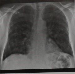 Снимки МРТ и КТ. Грибковая пневмония