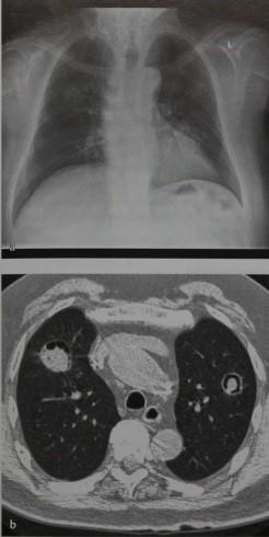 Снимки МРТ и КТ. Аспергиллема (неинвазивный аспергиллез)