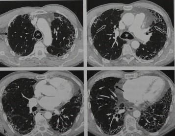 Снимки МРТ и КТ. Идиопатический фиброзирующий альвеолит