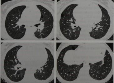 Снимки МРТ и КТ. Лимфоцитарный интерстициальный пневмонит