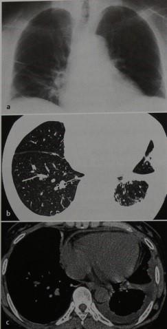 Снимки МРТ и КТ. Системная красная волчанка