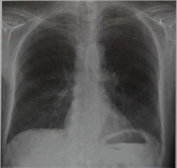 Снимки МРТ и КТ.  Ревматоидный артрит