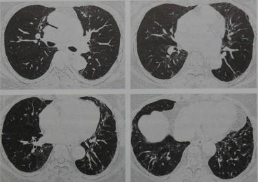 Снимки МРТ и КТ. Синдром Шегрена